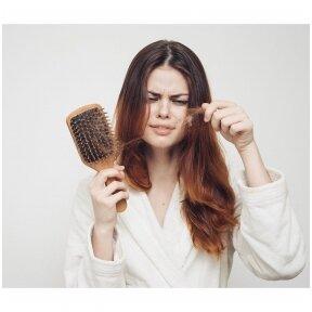 Plaukų slinkimas - dažniausios priežastys